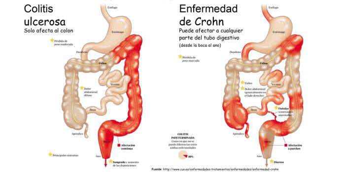 Dieta para enfermedad inflamatoria intestinal