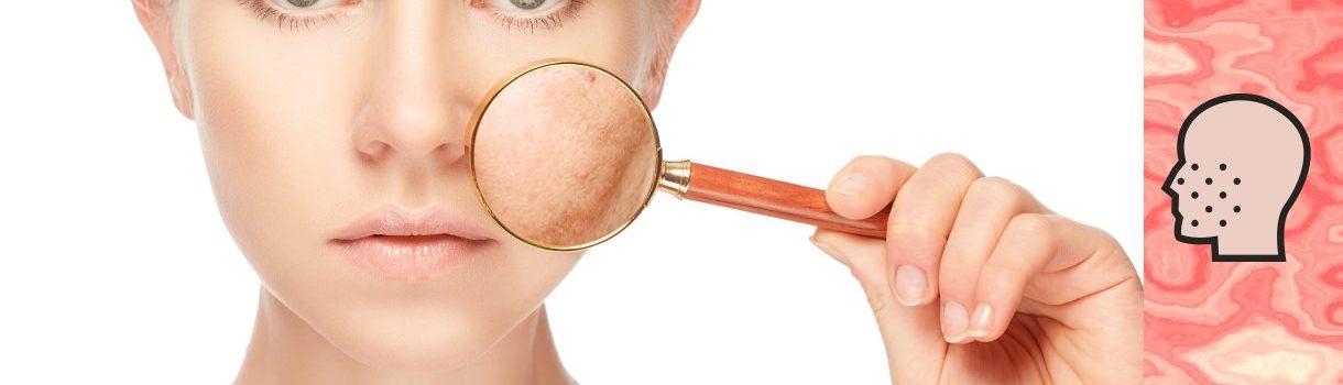 ¿Manchas en la piel? ¿Quieres mejorar de tus manchas en la piel?