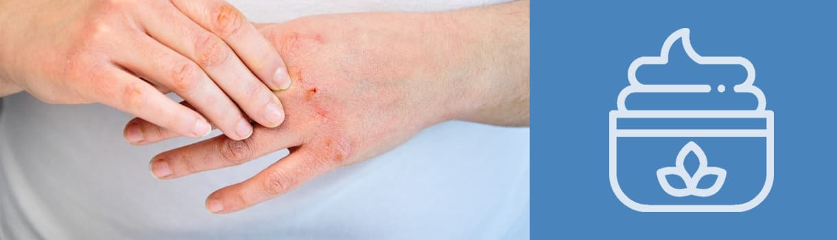 Xerosis o piel seca: cómo tratarla